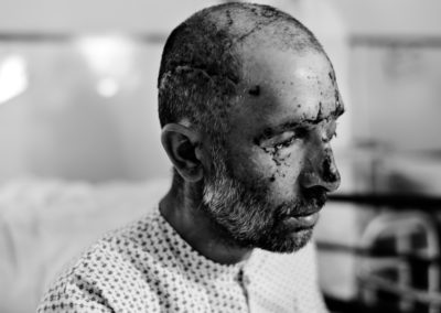 A civilian mine victim at Emergency War Victims' Hospital, Kabul.