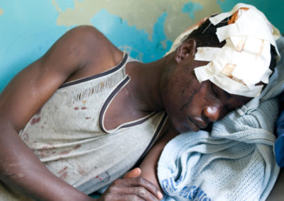 A young Luo man was slashed by Kikuyus with a machete during clashes in Naivasha.